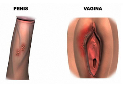 Сыпь при генитальном герпесе.