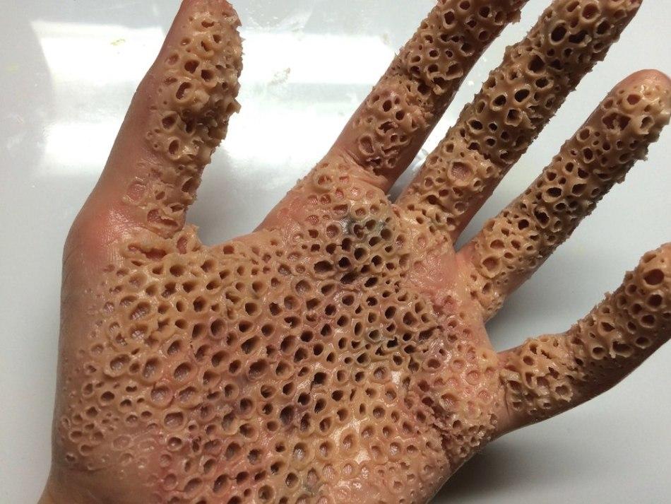 Негативный опыт лечения дерматологических заболеваний может стать причиной развития кожной трипофобии