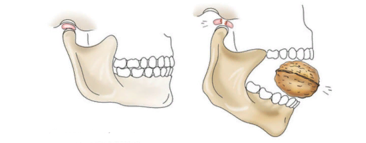 Вывих нижне-челюстного узла