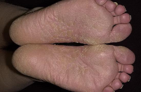Микоз ног.