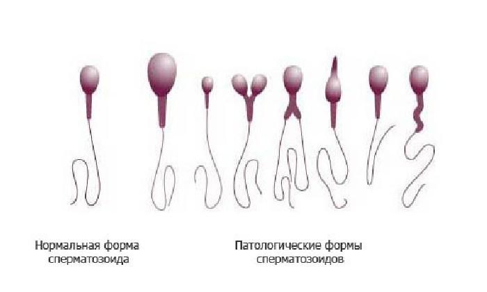 Аномальные формы сперматозоидов при астенотератозооспермии