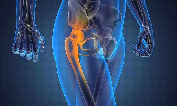 Воспаленные связки при тендините могут отдавать болью в тазобедренном суставе при ходьбе.