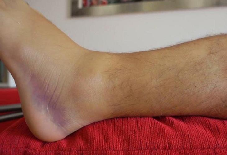 Ушибленная нога с гематомой