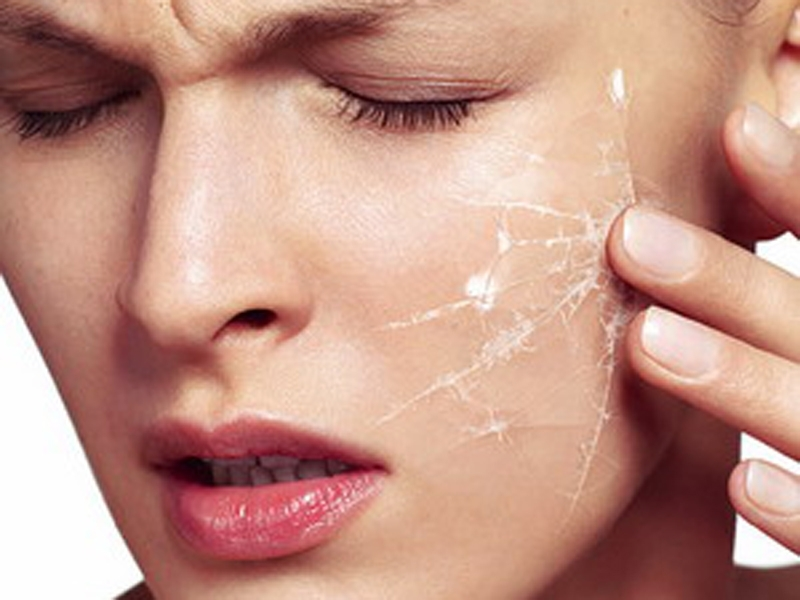 Некачественная или просроченная косметика, индивидуальная непереносимость - причины раздражения на лице