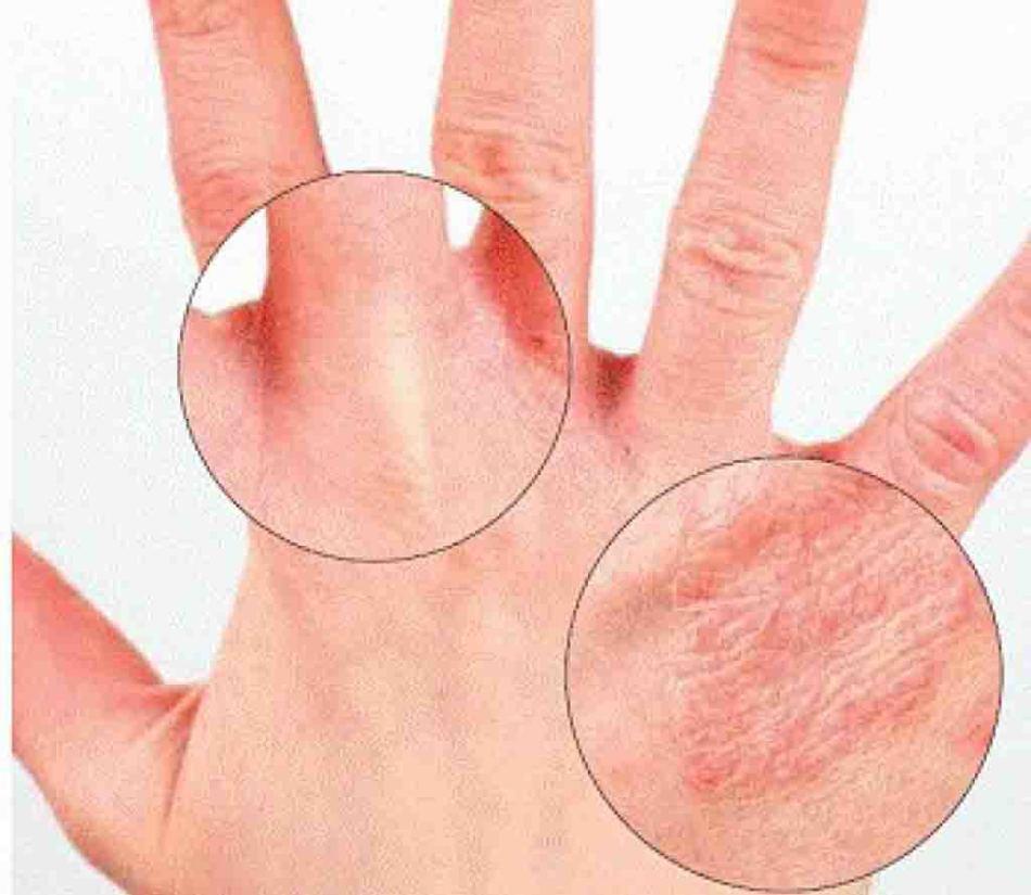 Чем больше клещей попало на кожу, тем короче инкубационный период