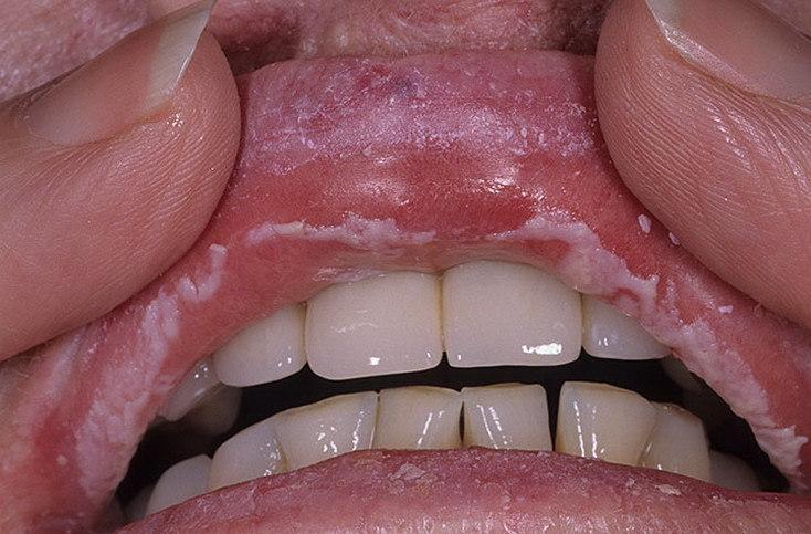 Причина жжения во рту: кандидоз.