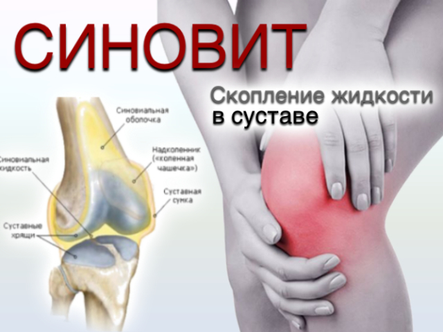Суставы коленей народная медицина симптомы вывиха сустава пальца