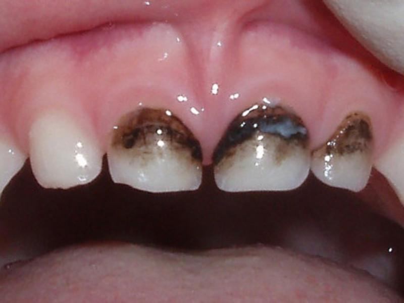 Молочные зубы ребенка, пораженные кариесом