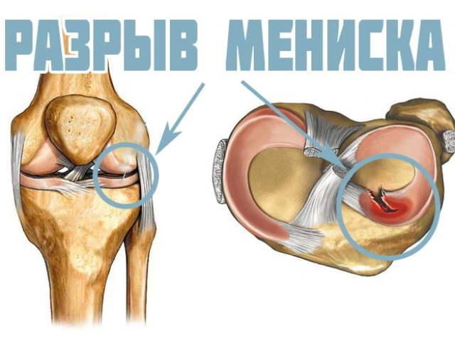 Разрыв мениска коленного сустава видео псориатический артрит коленного сустава лечение
