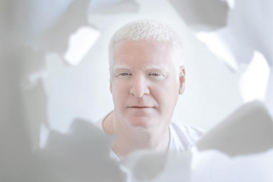 Признаки альбинизма