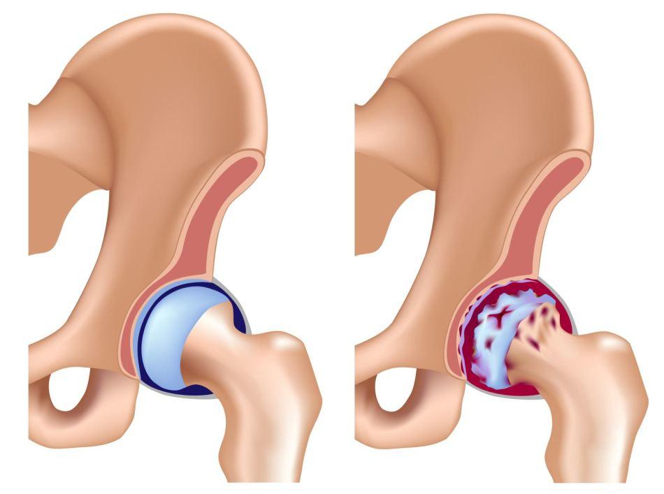 Коксартроз - одна из причин болей в тазобедренном суставе при сидении.
