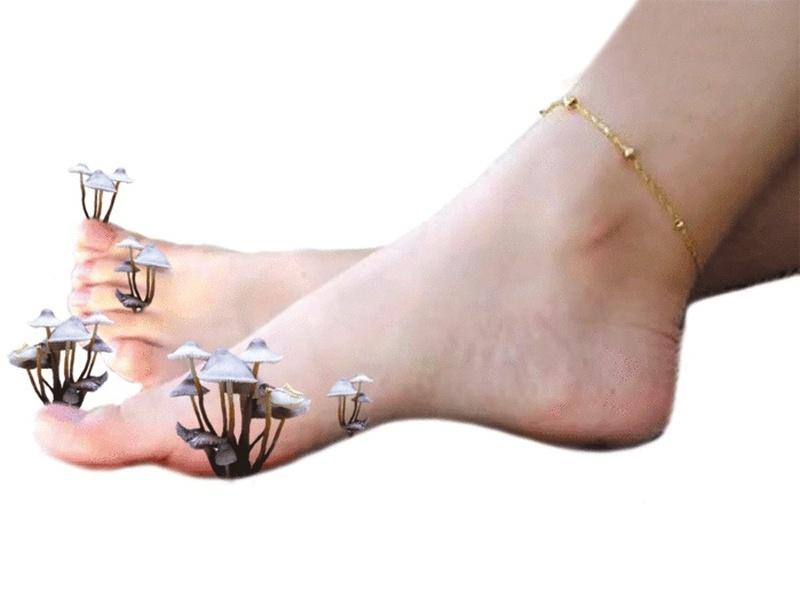Онихомикоз - грибковое заболевание ногтей ног