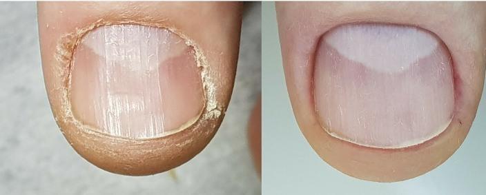 Гиперкератоз кутикулы ногтей