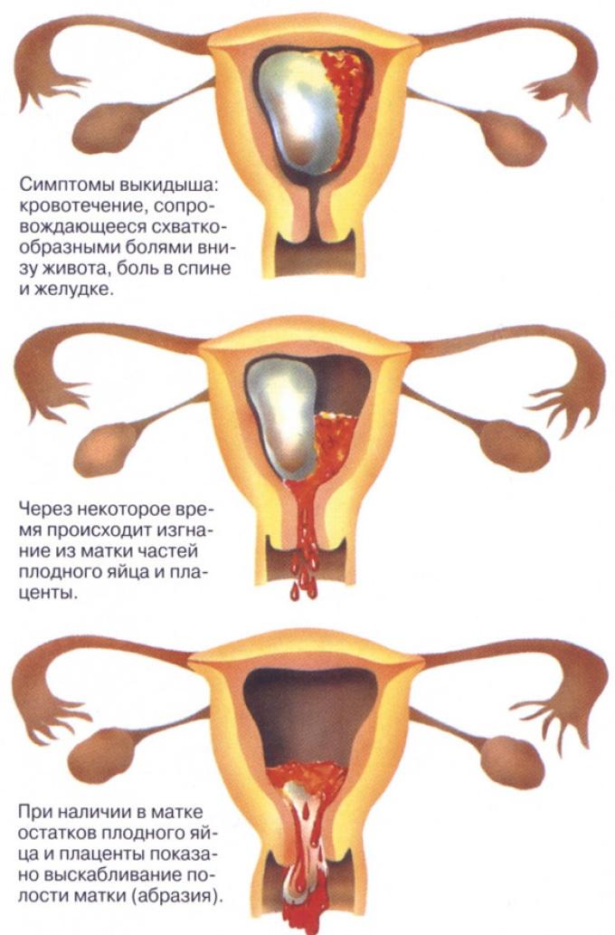 Как происходит самопроизвольный аборт