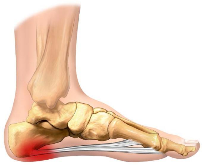 Схематическое изображения артрита стопы