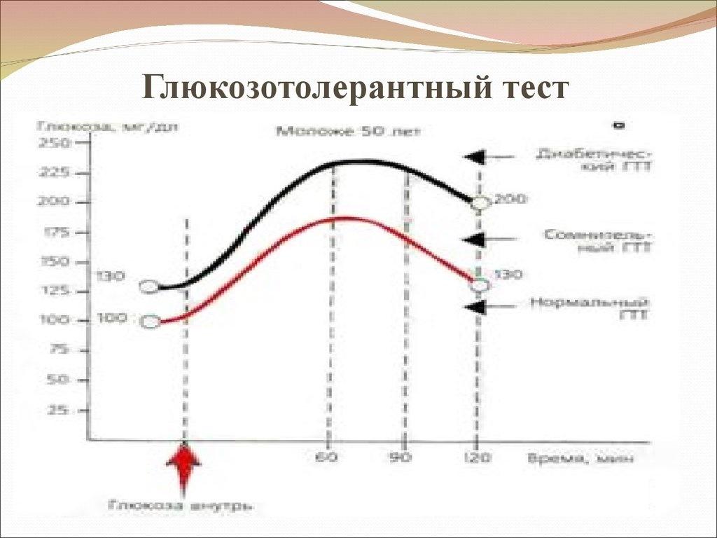 Гликемические кривые при проведении гтт