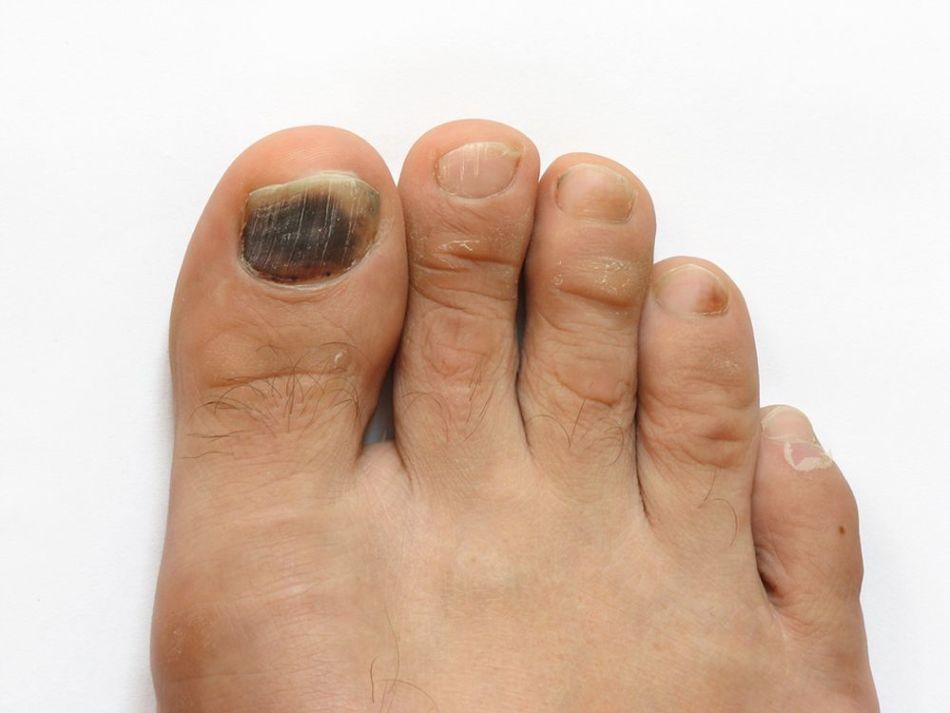 Деформация ногтя на большом пальце ноги