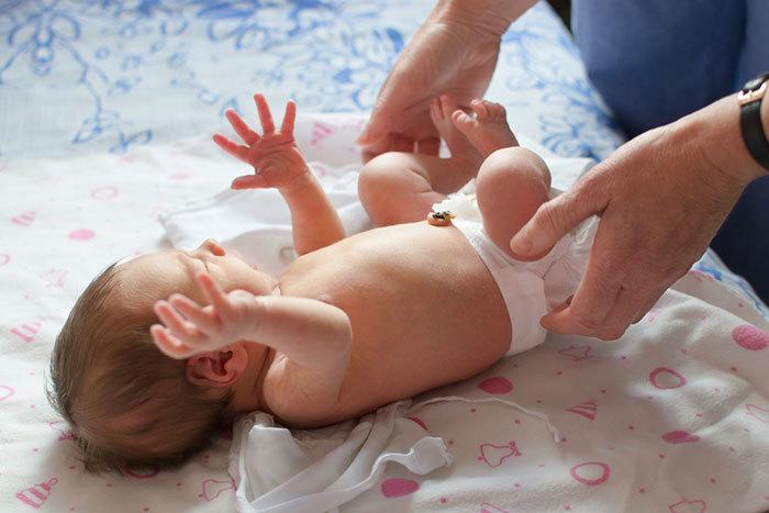 Новорожденный в памперсе с незажившим пупком