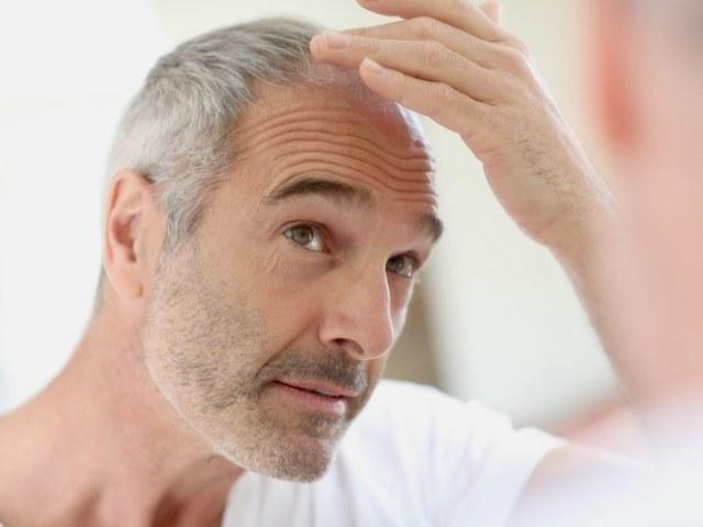 Почему выпадают волосы у мужчин и что с этим делать? Первые признаки облысения у мужчин — как распознать? Как восстановить волосы мужчине при облысении?