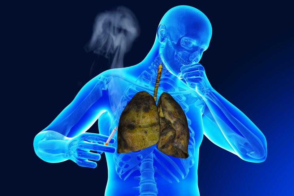 Одновременно с кашлем у курильщика появляется одышка.