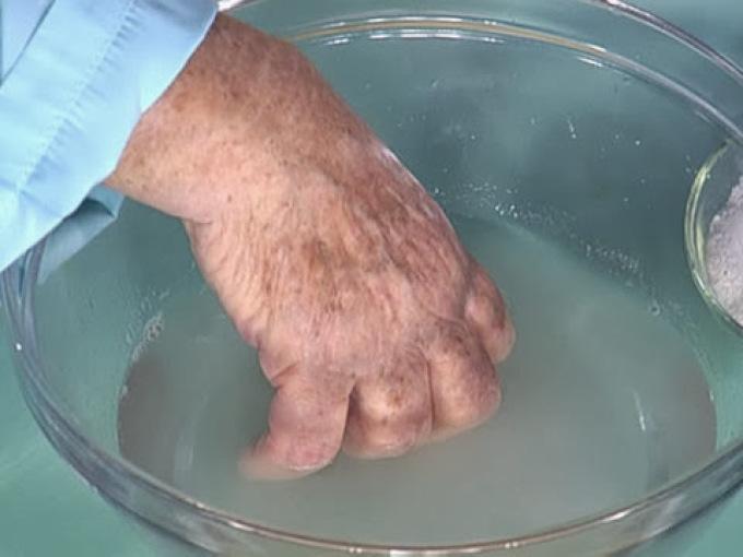 Содовая ванночка при нарыве на пальце.