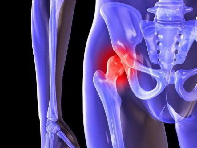 Деформирующий артроз тазобедренного сустава упражнения ноют суставы в бедрах