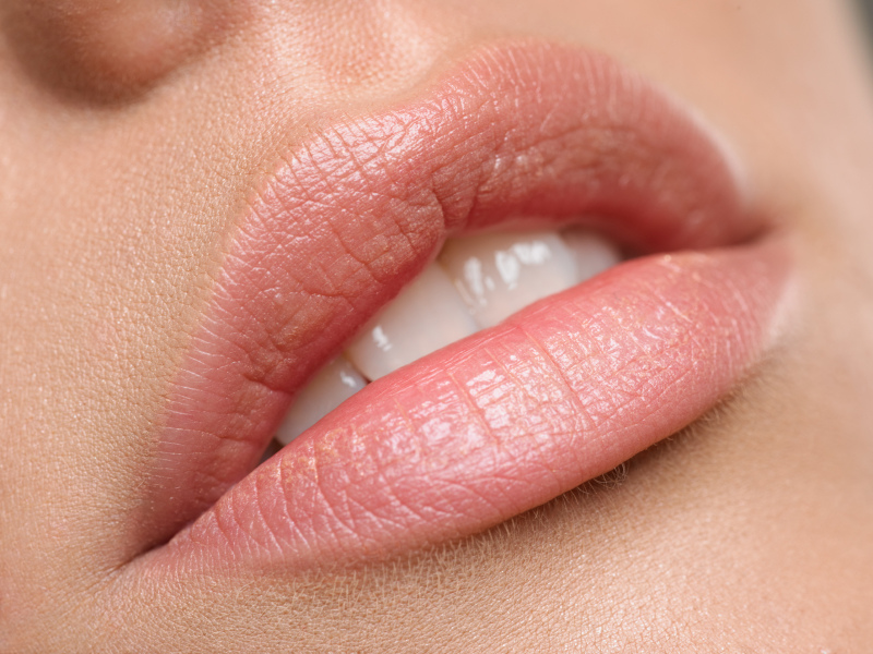 Верхняя губа чешется к страстным поцелуям
