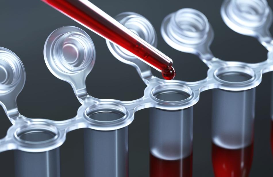 Лабораторное тестирование забора крови