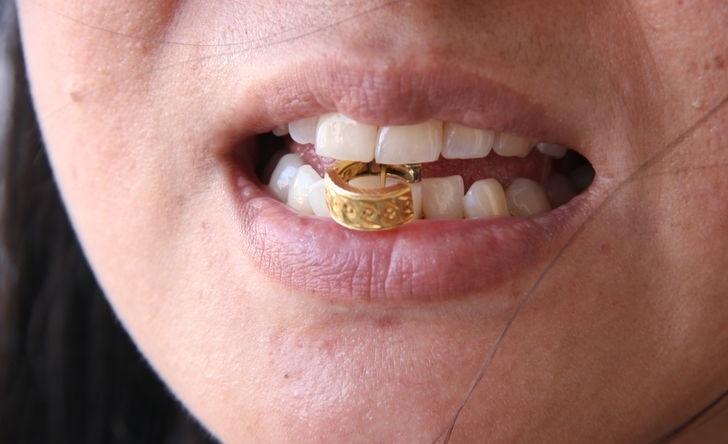 Червонное золото проверяют на зуб.