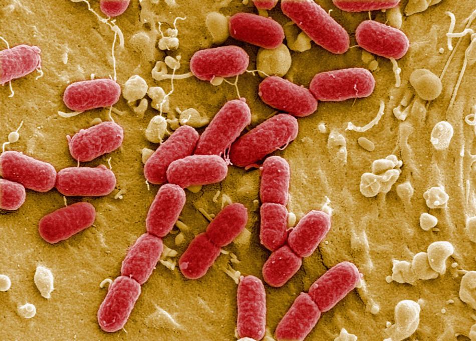 Микробы под микроскопом, которые вызывают развитие бартолинита