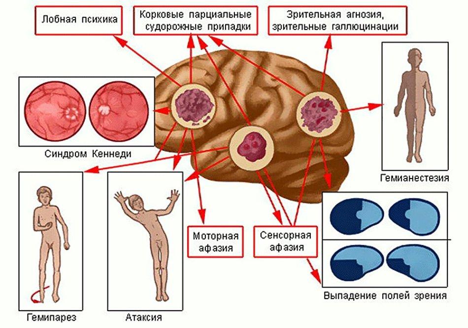 Опухоли мозга