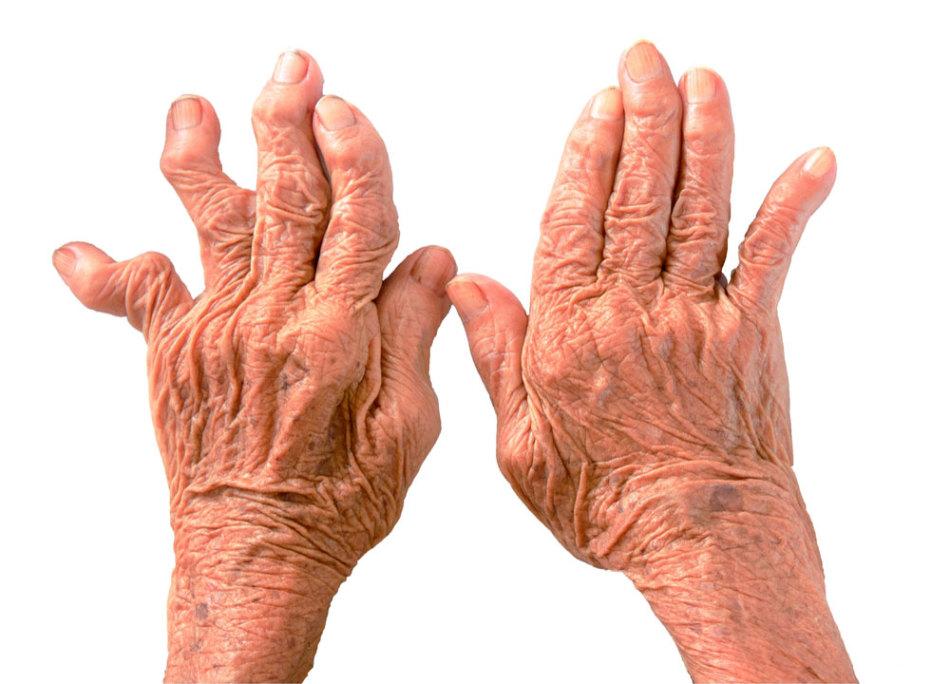 Боль от артрита