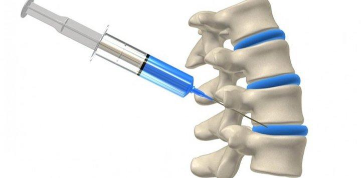 Блокада при болях спины в области позвоночника после сна