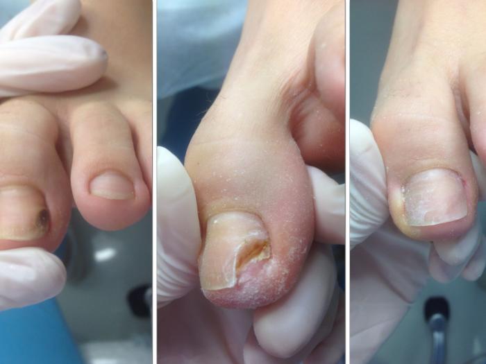 Протез ногтя требует особого ухода, а через 3 месяца его необходимо сменить