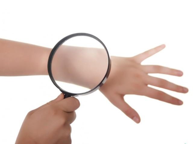 Псориаз – причины возникновения, симптомы, как лечить псориаз?