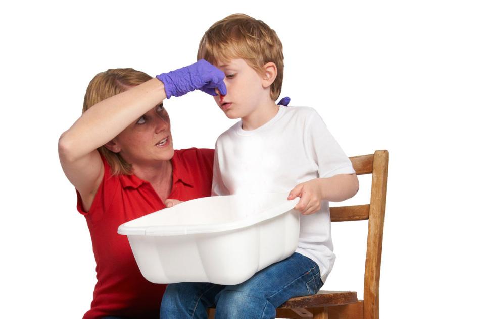Мама правильно останавливает носовое кровотечение