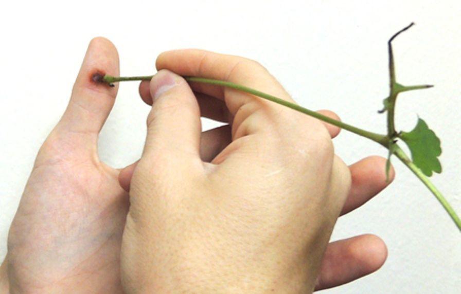 Лечение бородавки