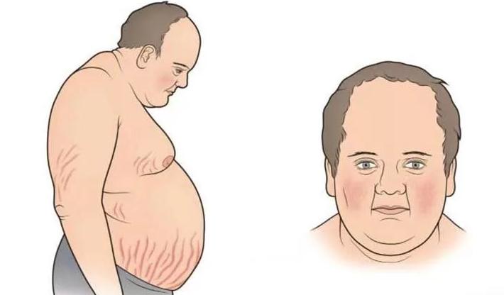 Синдром кушинга — пнс