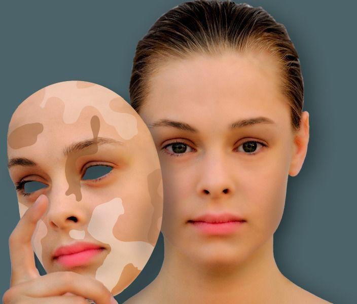 кожное заболевание витилиго как лечить