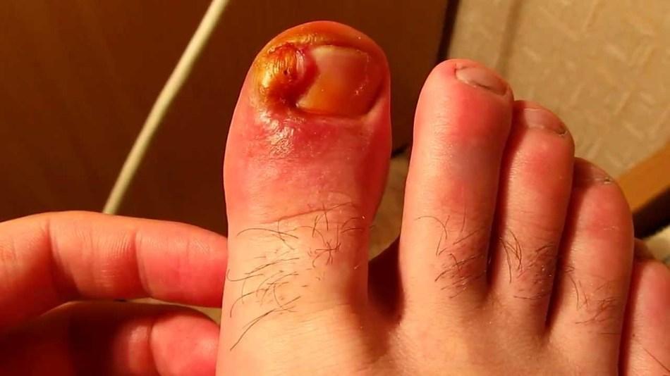 Дикое мясо на пальце ноги