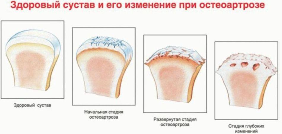 Схема развития недуга