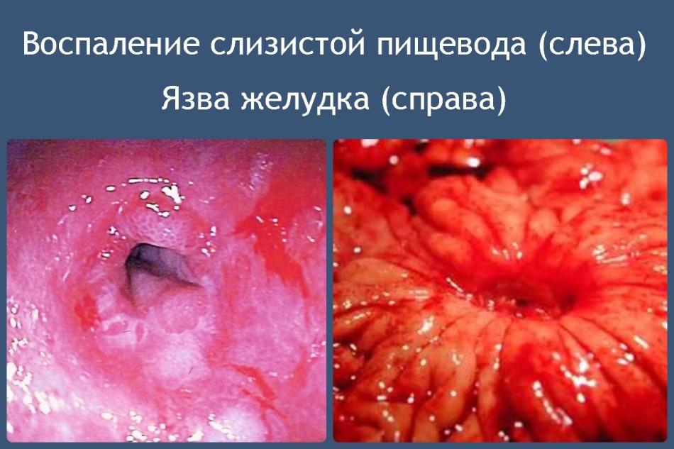 Проблемы пищеварительной системы