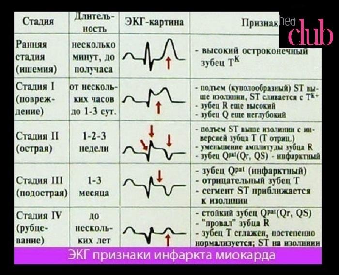 Расшифровка экг при инфаркте миокарда
