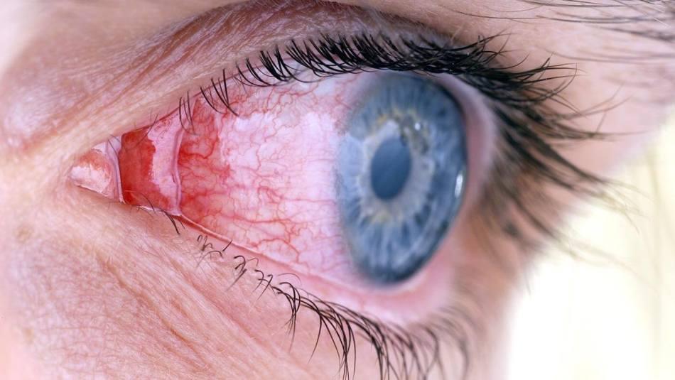 Красные капилляры на глазах