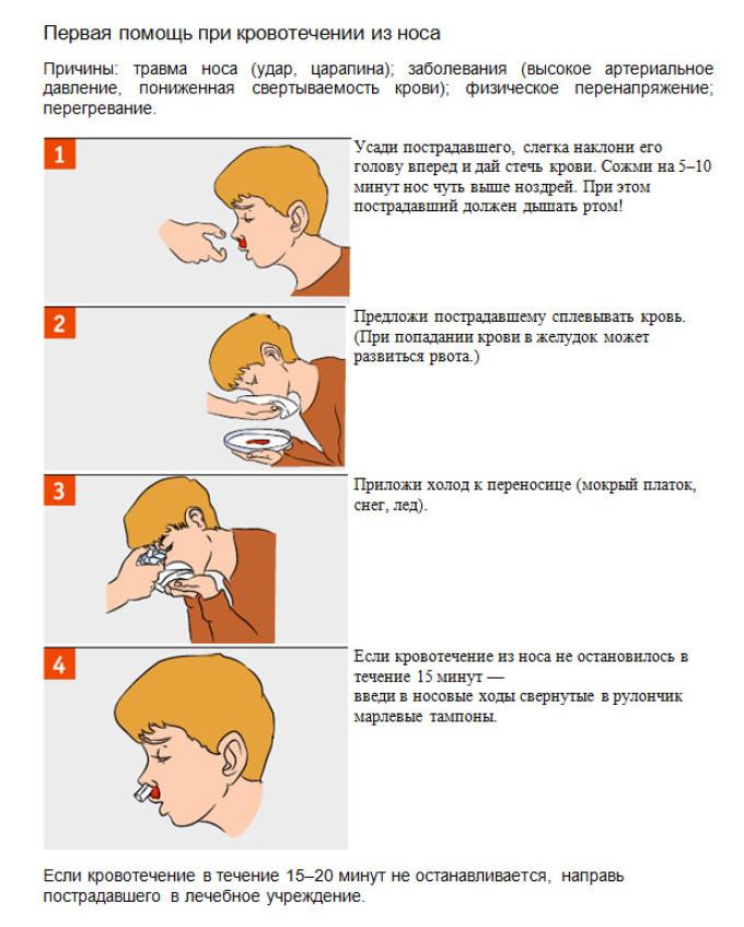Оказание помощи при носовом кровотечении.
