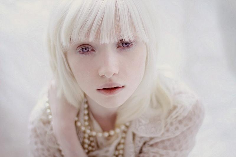 Кто такие люди альбиносы?