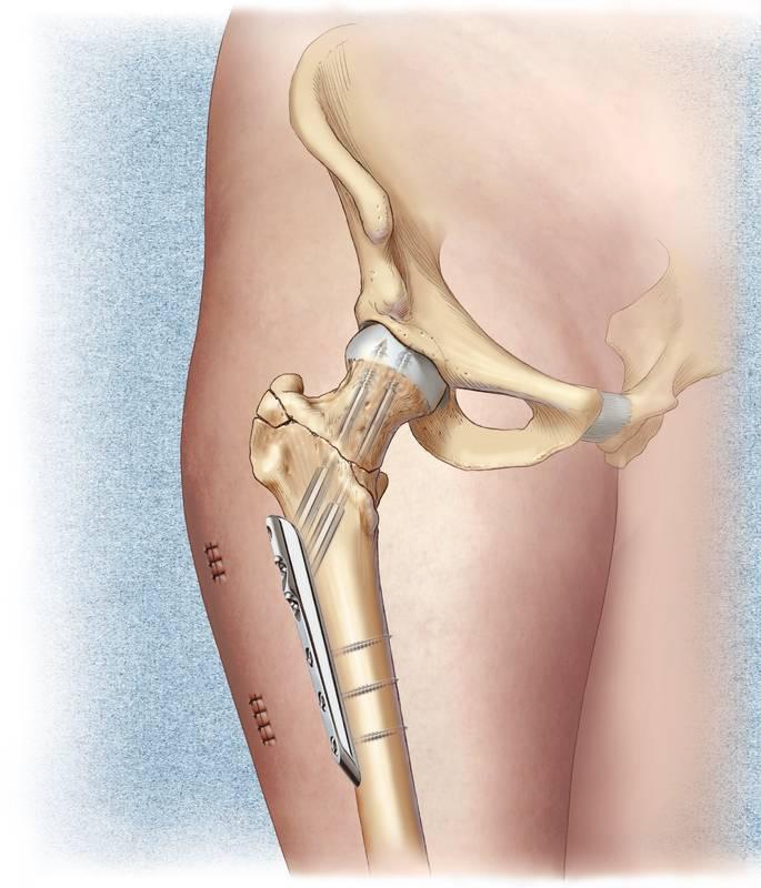 Замена сустава при переломе шейки бедра