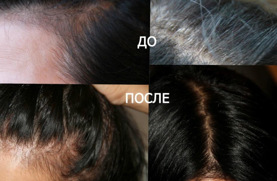 Фото-коллаж волос с сединами до и после окрашивания басмой в черный цвет