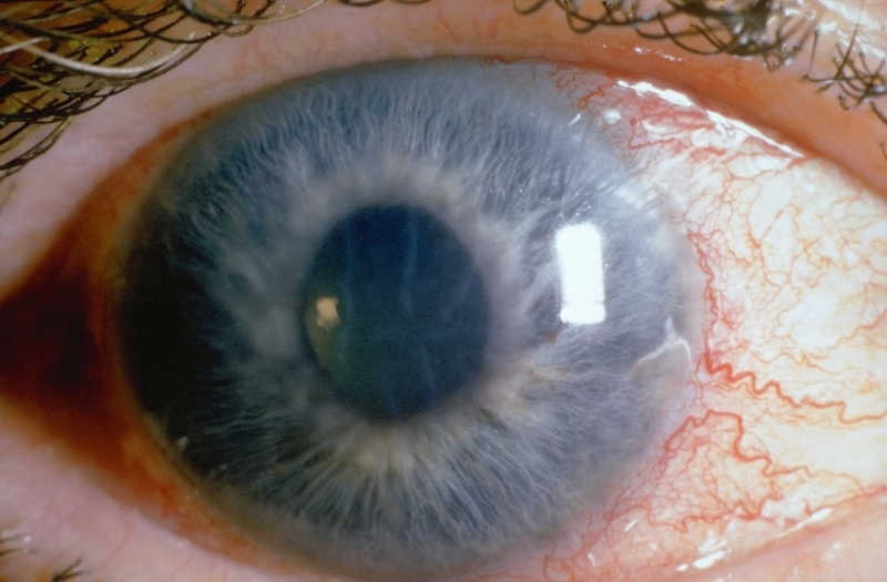 Лечение глаукомы настойкой личинок восковой моли