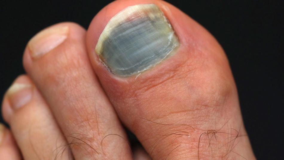 Черные точки на ногтях и под ногтями рук